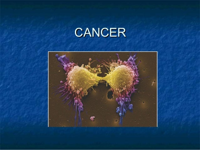 cancer ppt from mrs brenda lee