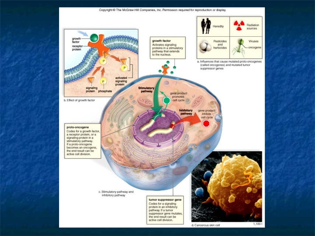 What are the different         kinds of Cancer?   Miscellaneous cancers:   Brain Tumors   Bone Tumors   Nasopharyngeal...