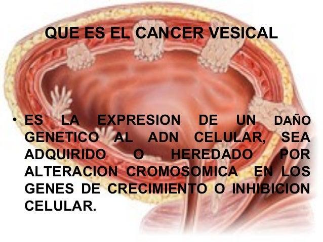 QUE ES EL CANCER VESICAL  • ES LA EXPRESION DE UN DAÑO  GENETICO AL ADN CELULAR, SEA  ADQUIRIDO O HEREDADO POR  ALTERACION...