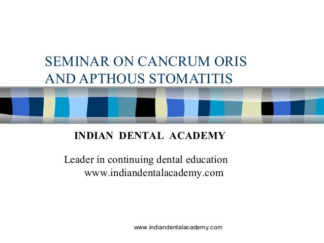 SEMINAR ON CANCRUM ORIS AND APTHOUS STOMATITIS INDIAN DENTAL ACADEMY Leader in continuing dental education www.indiandenta...