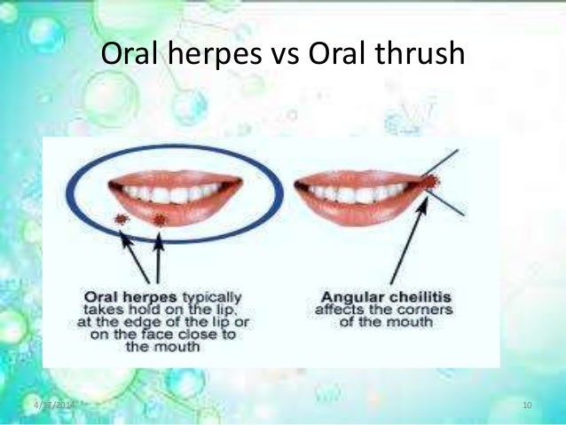 Yeast infection and oral sex