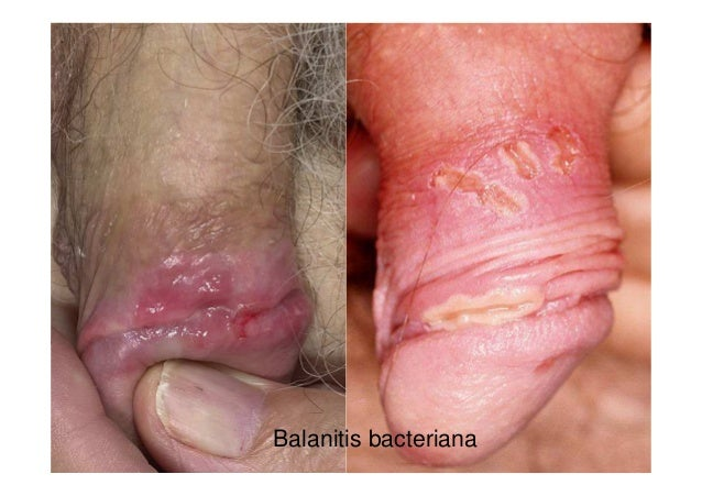 Vagina blisters due to chafing
