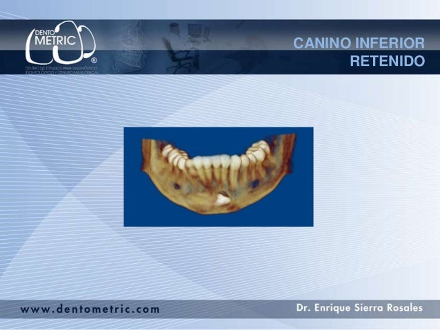 CANINO INFERIOR      RETENIDO