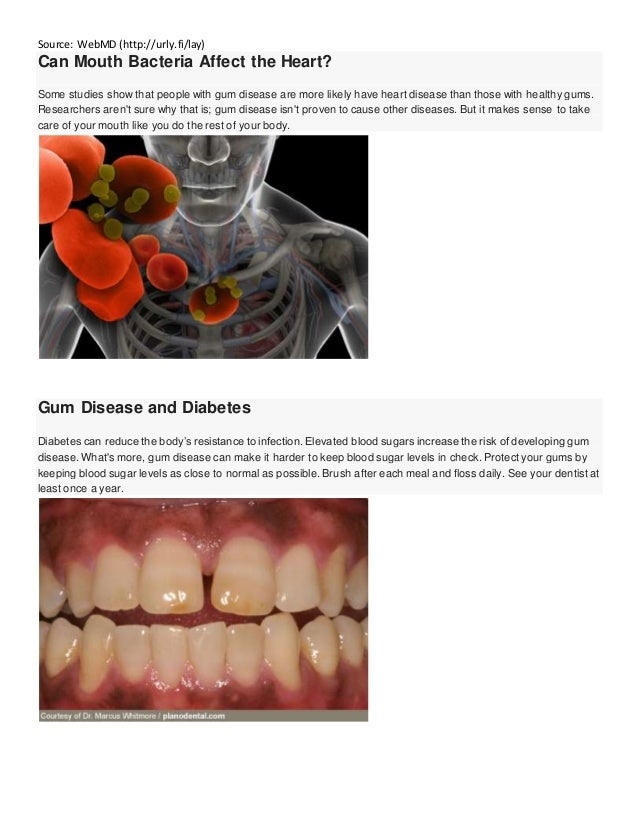 Periodontal Disease And Heart Health Webmd Autos Post