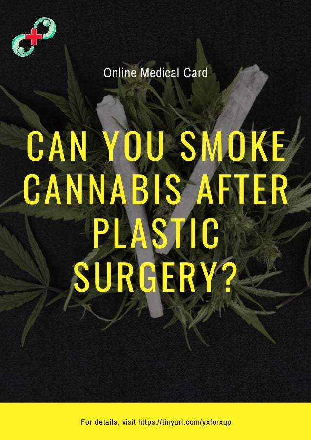 CAN YOU SMOKE CANNABIS AFTER PLASTIC SURGERY? For details, visit https://tinyurl.com/yxforxqp Online Medical Card