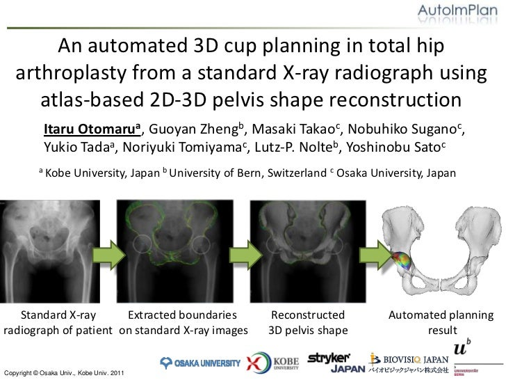 An automated 3D cup planning in total hip arthroplasty from a standard X‑ray radiograph using atlas-based 2D-3D pelvis sha...