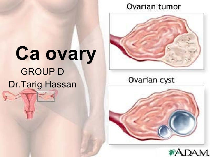Ca ovary GROUP D Dr.Tarig Hassan
