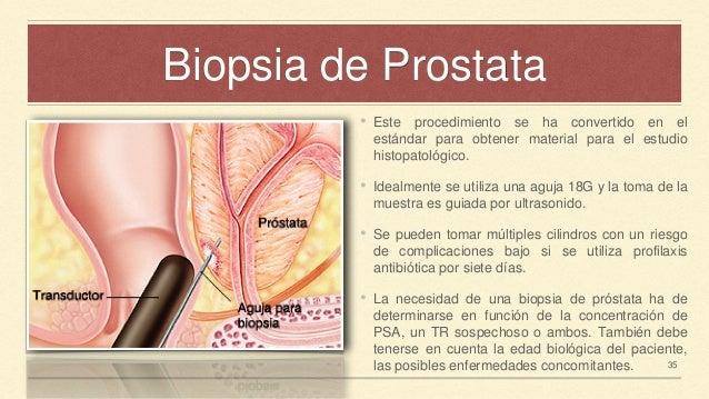 biopsia de prostata riesgos