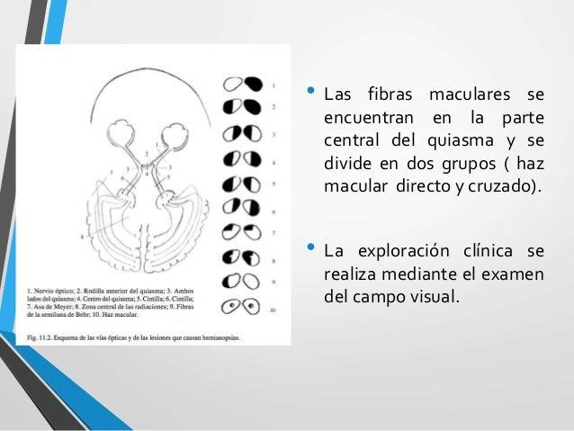 Enfermedades del nervio óptico