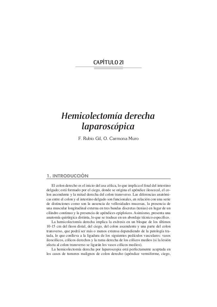 CAPÍTULO 21          Hemicolectomía derecha              laparoscópica                      F. Rubio Gil, O. Carmona Muro1...