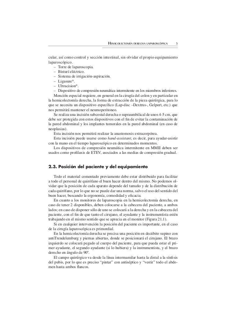 Hemicolectomía derecha laparoscópica