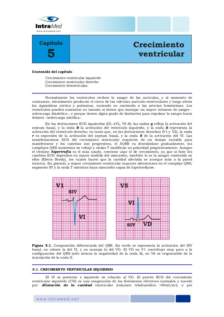 Contenido del capítulo        Crecimiento ventricular izquierdo        Crecimiento ventricular derecho        Crecimiento ...