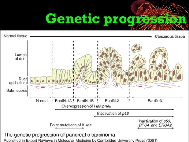 Pancreatic Carcinoma Obstructive Jaundice