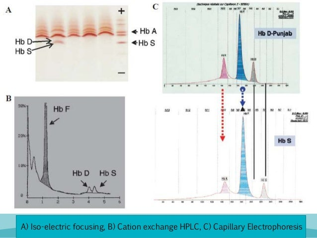 capillary electrophoresis principles and applications