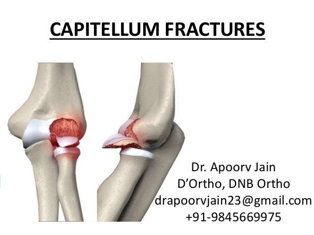 CAPITELLUM FRACTURES Dr. Apoorv Jain D'Ortho, DNB Ortho drapoorvjain23@gmail.com +91-9845669975