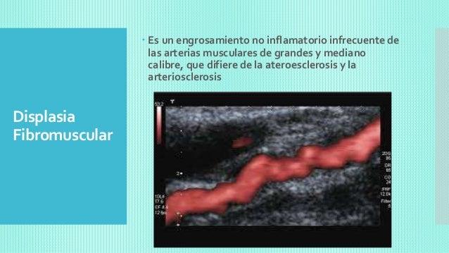 Capitulo 10 anatomia patologica