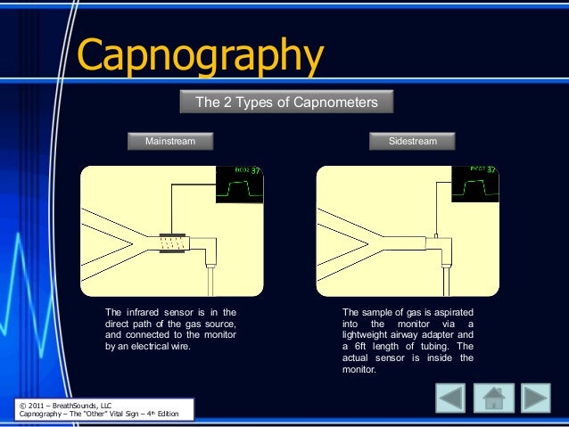 Capnography The 2 Types of Capnometers Mainstream Sidestream The infrared sensor is in the direct path of the gas source, ...