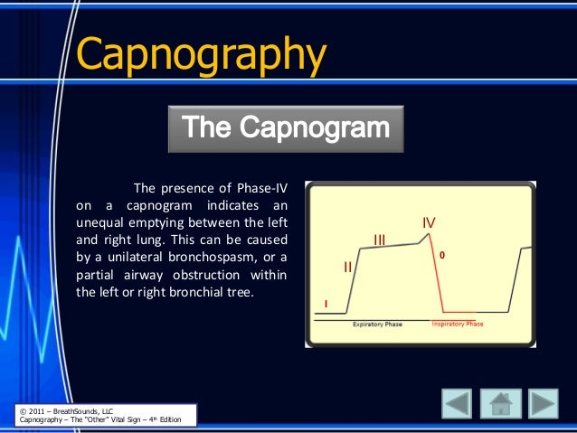 Capnography The presence of Phase-IV on a capnogram indicates an unequal emptying between the left and right lung. This ca...