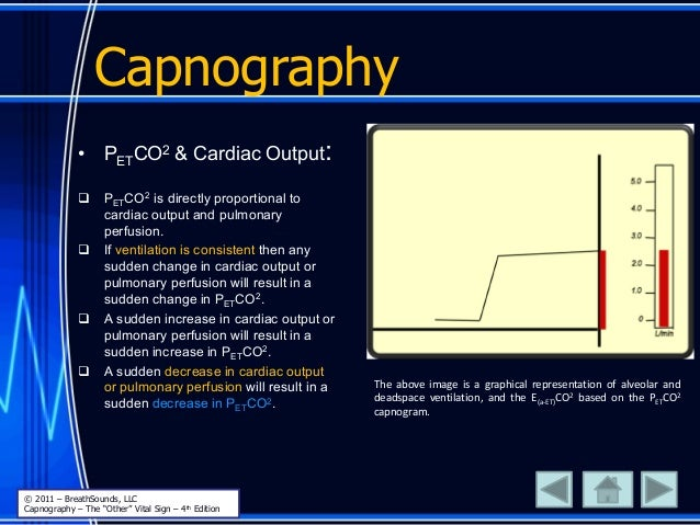 Capnography The above image is a graphical representation of alveolar and deadspace ventilation, and the E(a-ET)CO2 based ...