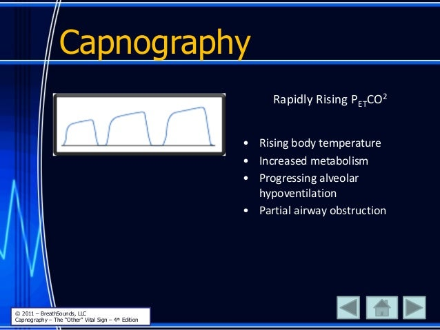 Capnography Rapidly Rising PETCO2 • Rising body temperature • Increased metabolism • Progressing alveolar hypoventilation ...