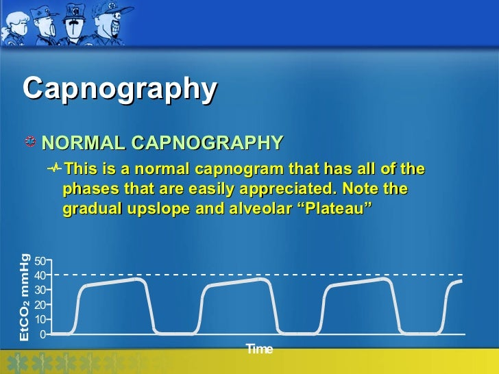 Capnography NORMAL CAPNOGRAPHY     This is a normal capnogram that has all of the     phases that are easily appreciated. ...