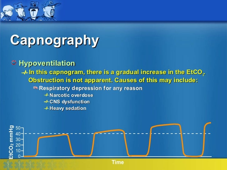 Capnography Hypoventilation     In this capnogram, there is a gradual increase in the EtCO2.     Obstruction is not appare...