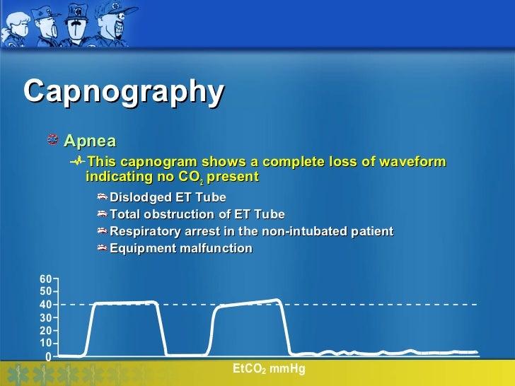 Capnography     Apnea       This capnogram shows a complete loss of waveform       indicating no CO2 present          Disl...