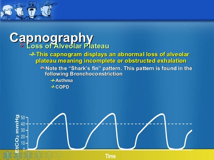 Capnography  Loss of Alveolar Plateau        This capnogram displays an abnormal loss of alveolar        plateau meaning i...