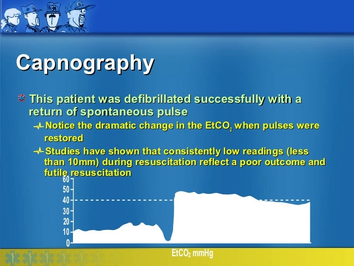 Capnography This patient was defibrillated successfully with a return of spontaneous pulse   Notice the dramatic change in...