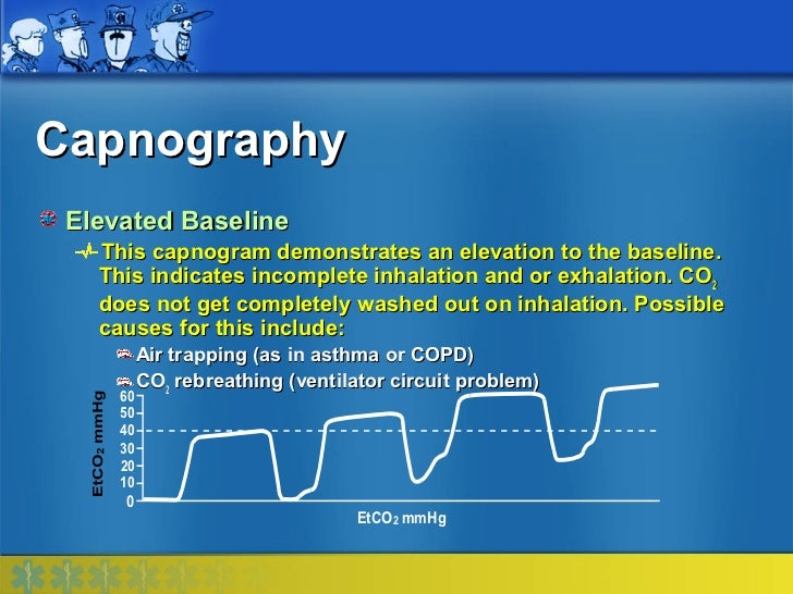 Capnography Elevated Baseline   This capnogram demonstrates an elevation to the baseline.   This indicates incomplete inha...