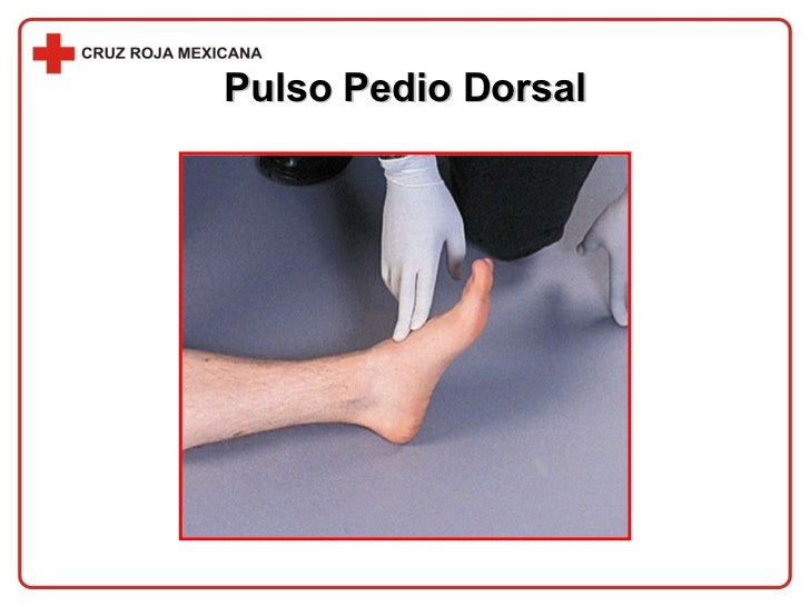 Pulso Pedio Dorsal