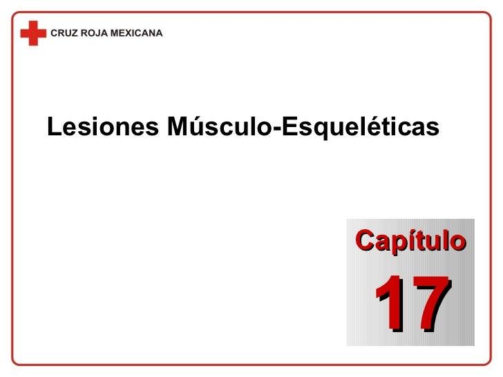 Lesiones Músculo-Esqueléticas Capítulo 17