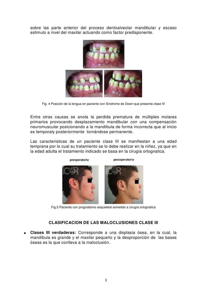 Caracteristicas clinicas y cefalometricas de clase iii Slide 3