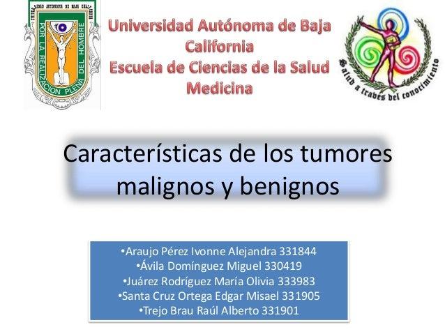 Características de los tumores malignos y benignos •Araujo Pérez Ivonne Alejandra 331844 •Ávila Domínguez Miguel 330419 •J...