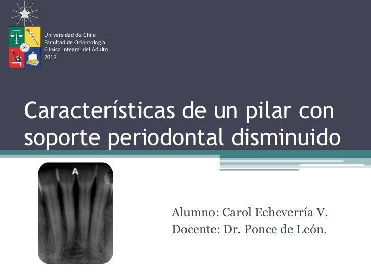 Universidad de Chile Facultad de Odontología Clínica Integral del Adulto 2012Características de un pilar consoporte period...