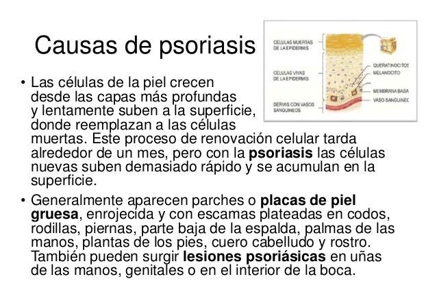 Streptotsid para la psoriasis