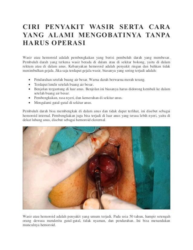 CIRI PENYAKIT WASIR SERTA CARA YANG ALAMI MENGOBATINYA TANPA HARUS OPERASI Wasir atau hemoroid adalah pembengkakan yang be...