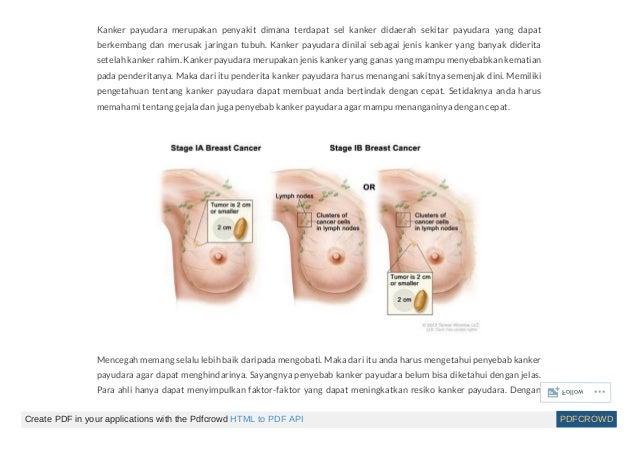 Cara mengobati kanker payudara pada wanita