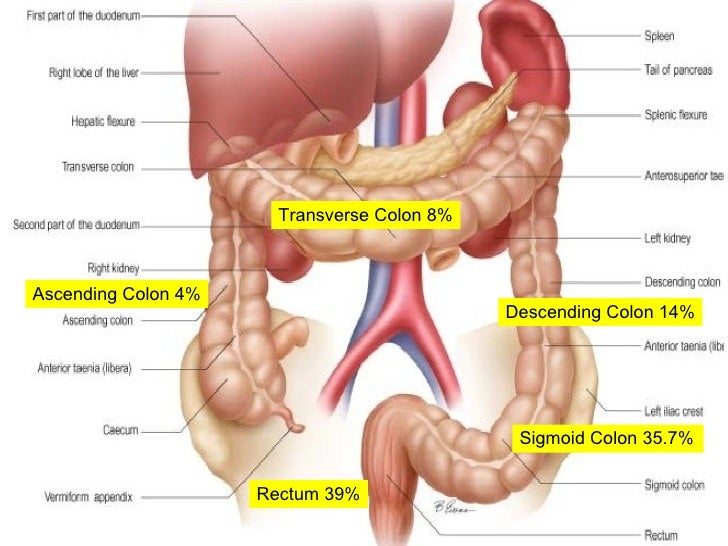 carcinoma colon and management, Human body