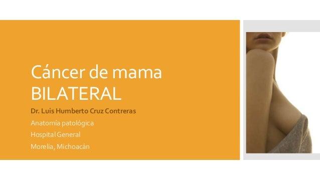 Cáncer de mama BILATERAL Dr. Luis Humberto Cruz Contreras Anatomía patológica Hospital General Morelia, Michoacán