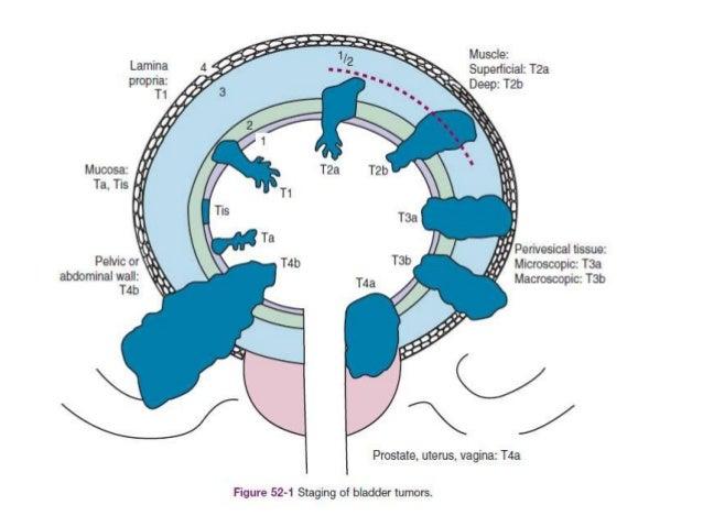Carcinoma bladder Slide 3