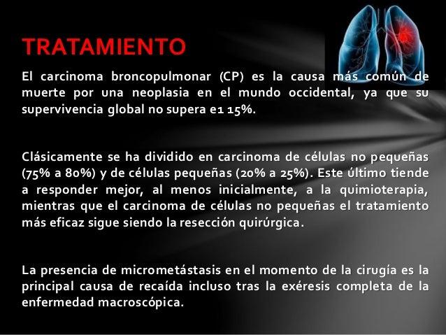 Tratamiento del carcinoma broncog nico - Tratamiento para carcoma ...