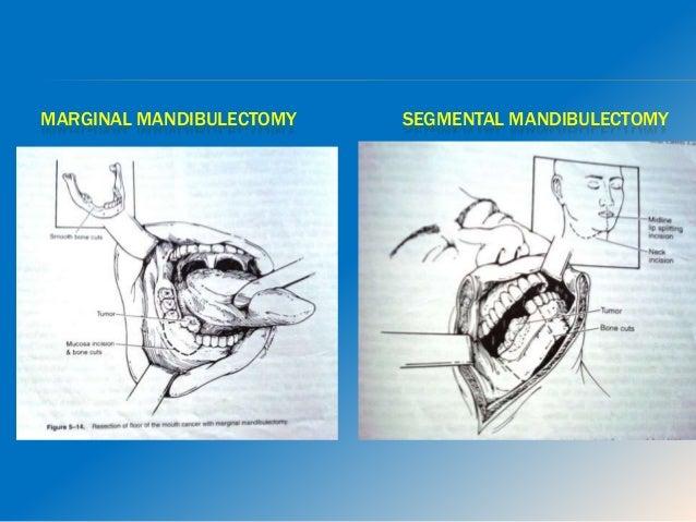 5. Lymphovascular invasion 6. Bone / Cartilage / Skin / Soft tissue involvement 7. Margins of excision, submucosal spread,...