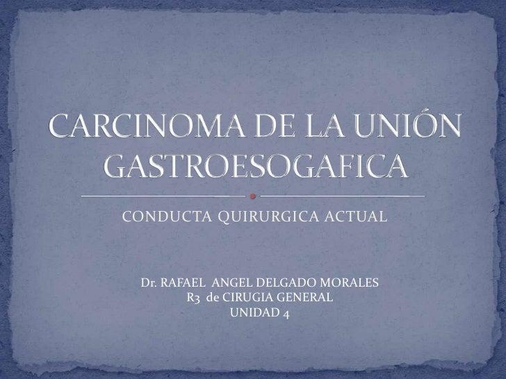 CONDUCTA QUIRURGICA ACTUAL<br />CARCINOMA DE LA UNIÓN GASTROESOGAFICA<br />Dr. RAFAEL  ANGEL DELGADO MORALES<br />R3  de C...