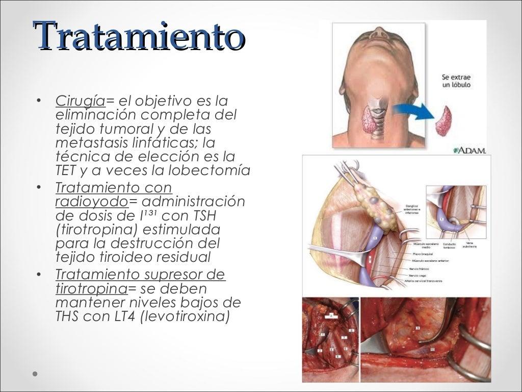 Carcinoma de tiroides - Tratamiento para carcoma ...