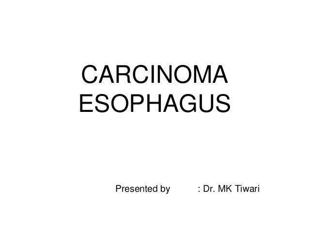 CARCINOMA ESOPHAGUS Presented by : Dr. MK Tiwari