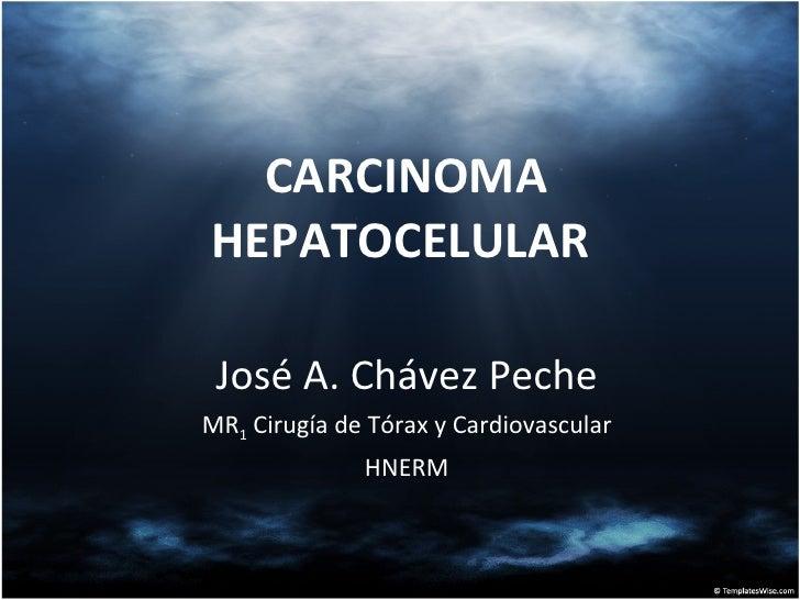 CARCINOMA HEPATOCELULAR  José A. Chávez Peche MR 1  Cirugía de Tórax y Cardiovascular HNERM