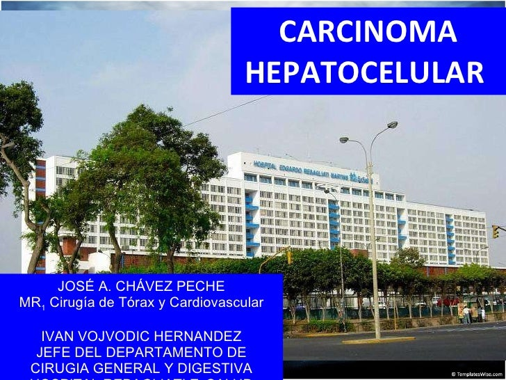 CARCINOMA HEPATOCELULAR  JOSÉ A. CHÁVEZ PECHE MR 1  Cirugía de Tórax y Cardiovascular IVAN VOJVODIC HERNANDEZ JEFE DEL DEP...