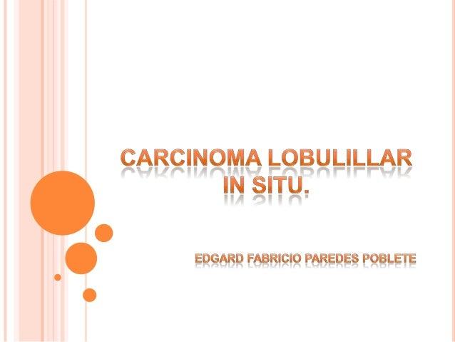 "CA. DUCTAL O   CORRECTO:FACTOR DE  RIESGO             LOBULILLAR    ""NEOPLASIA            INFILTRANTE.   LOBULILLAR"""