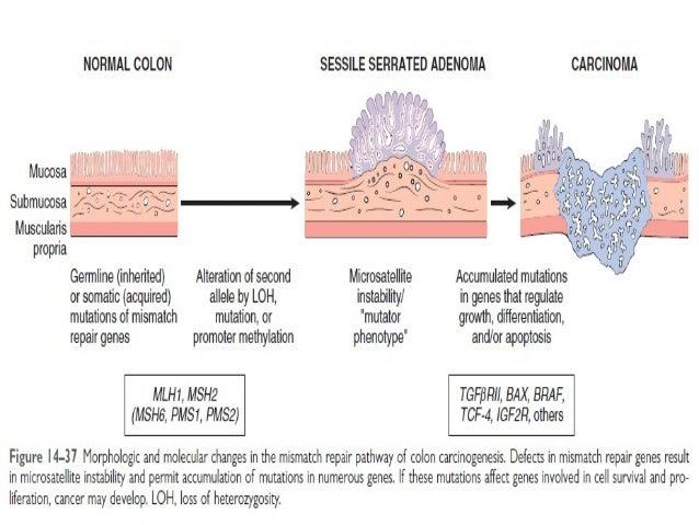 Carcinoma Of Large Intestine Colorectal Carcinoma Adenocarcinoma